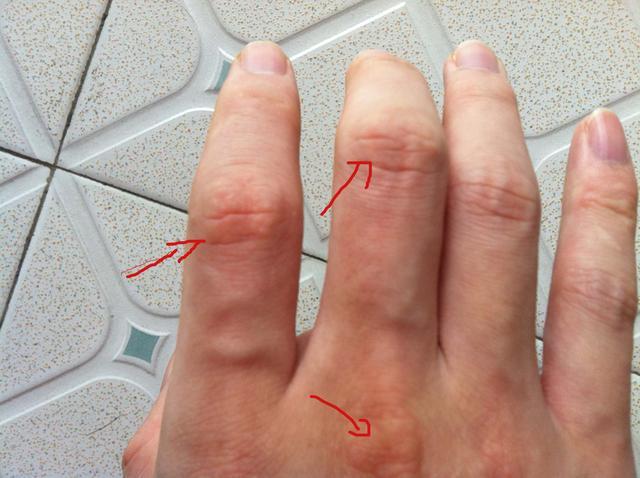初春手指脫皮怎麼辦 手指脫皮應對辦法 - 每日頭條