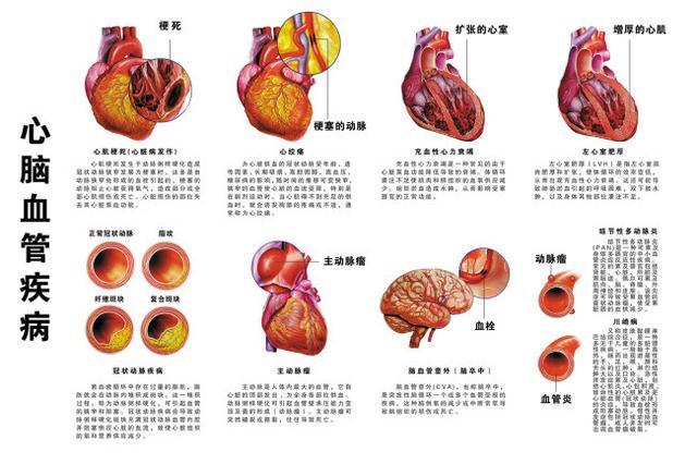 疏通血管 清除雜質 三氧大自血療法幫你治療心血管疾病 - 每日頭條