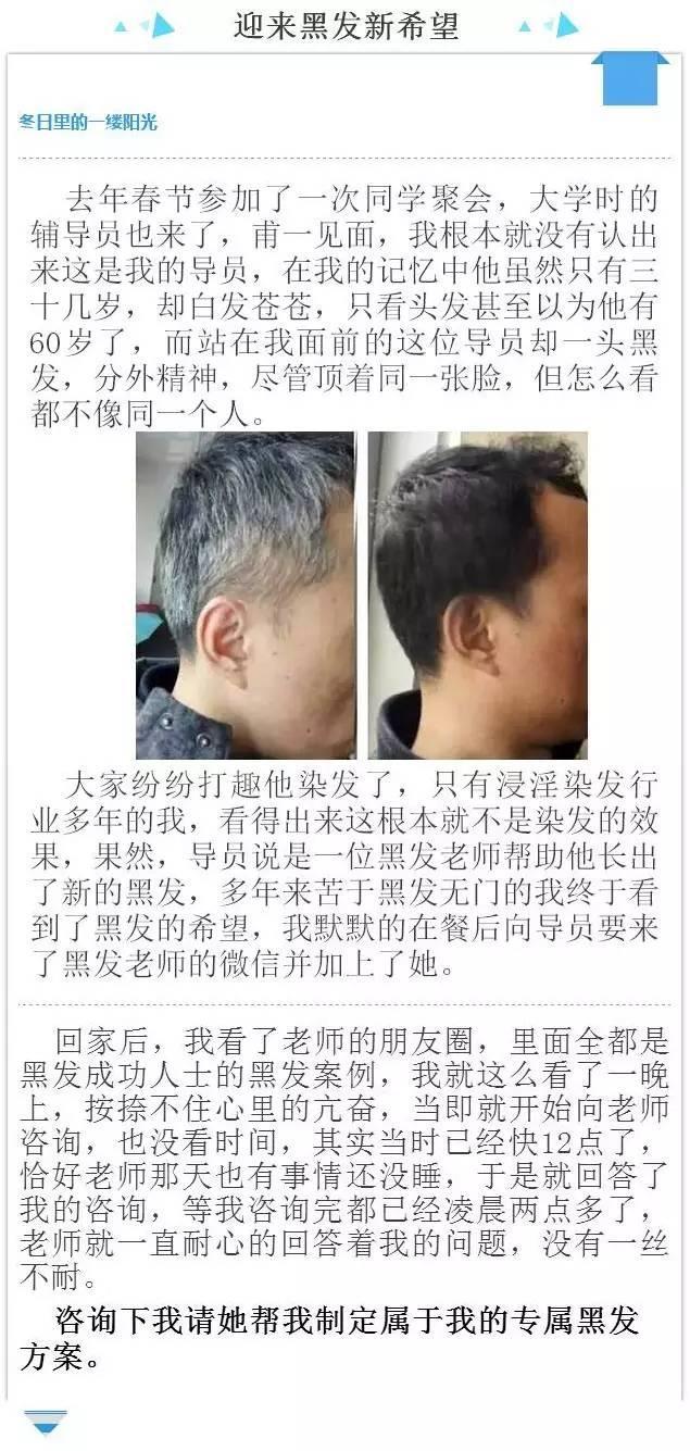 白髮成黑髮只要簡單3步,輕易解決白頭髮問題! - 每日頭條