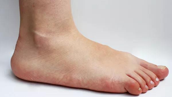 腳掌疼是什麼原因呢?有沒有治療辦法? - 每日頭條