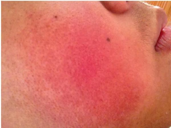 紅血絲的治療方法掌握好。祛除紅血絲很簡單 - 每日頭條