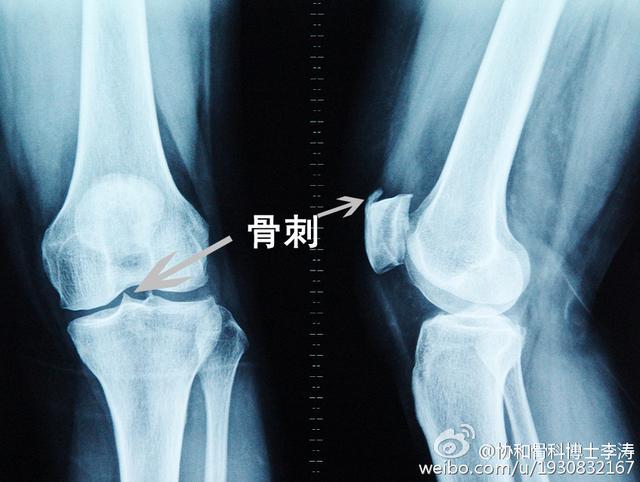 膝蓋疼痛,有骨刺?一招就解決,特管用!記得轉發給家人看 - 每日頭條