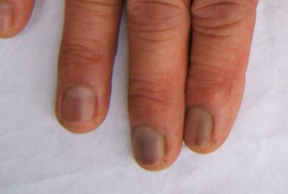 如何治療灰指甲效果比較理想呢 - 每日頭條