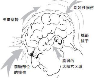 腦震盪會導致失憶嗎 - 每日頭條