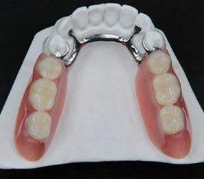 三種不同的缺牙修複方式 - 每日頭條