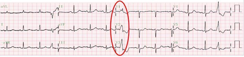 有圖有真相!心臟病早期診斷又出「神器」 - 每日頭條