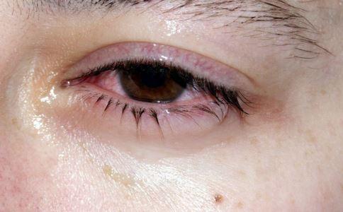 結膜炎是什麼原因引起 怎麼治療才好 - 每日頭條