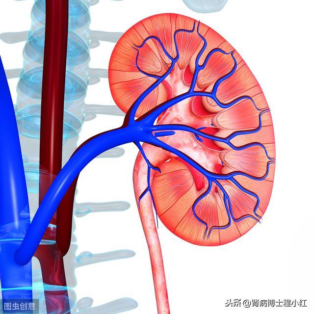 腎結石常見有哪些癥狀?如何做到自測預防? - 每日頭條