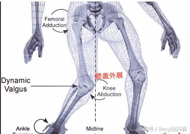 膝蓋疼痛康復丨膝關節——(一)常見傷病概述1 - 每日頭條