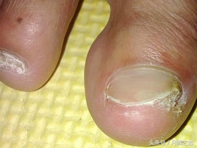 腳趾甲發黃變厚怎麼治 教你三招避免變成灰指甲 - 每日頭條