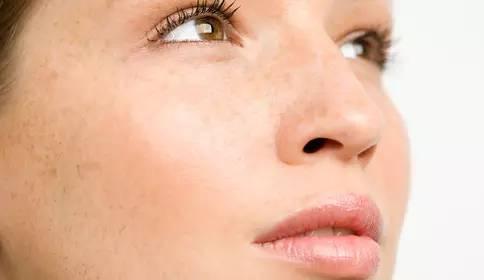 發現臉上有個小疙瘩。不像痘痘。該怎麼辦? - 每日頭條