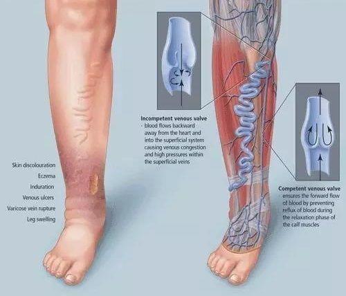 下肢深靜脈血栓病因分析與預防 - 每日頭條
