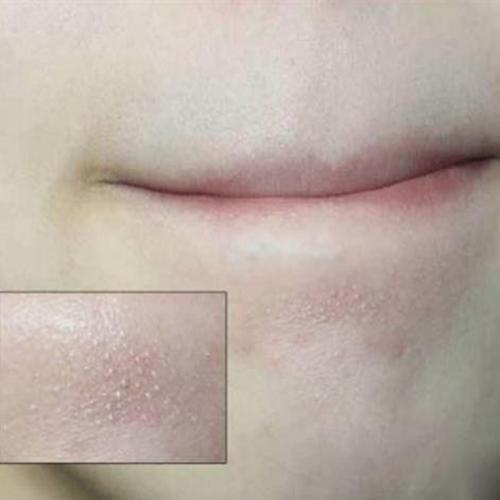 下巴的白色小顆粒。很多人不知道是啥 - 每日頭條
