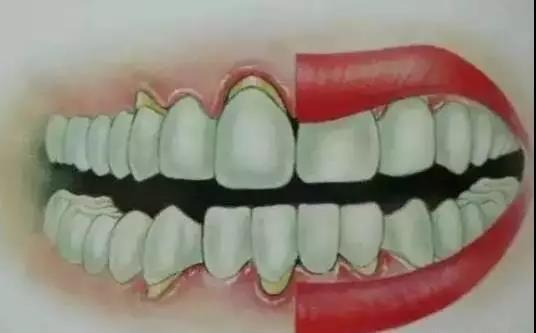 終於知道什麼「牙齦萎縮」了 - 每日頭條