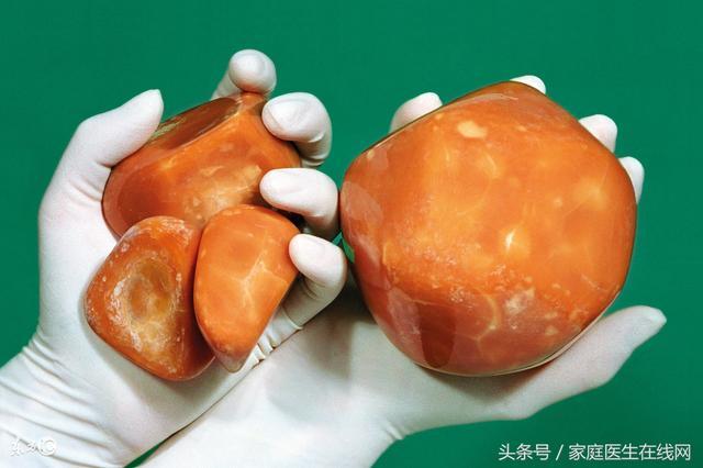 身體出現這4個癥狀,很遺憾,膽管癌已經到了晚期! - 每日頭條