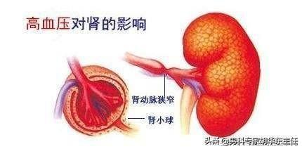 高血壓小心腎損害發生。從夜尿次數可以判斷出來 - 每日頭條