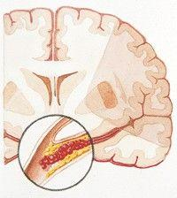 都是腦梗塞為啥有輕有重。預後到底和什麼有關? - 每日頭條