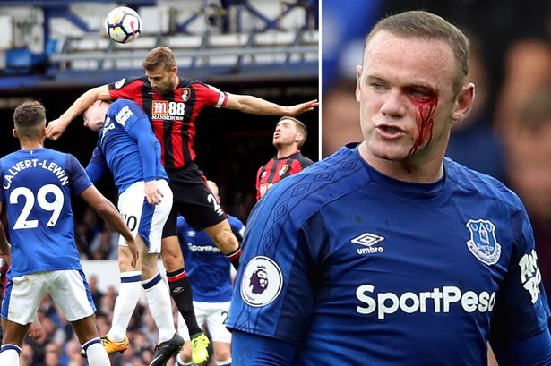 Image result for Rooney suffers nasty eye injury