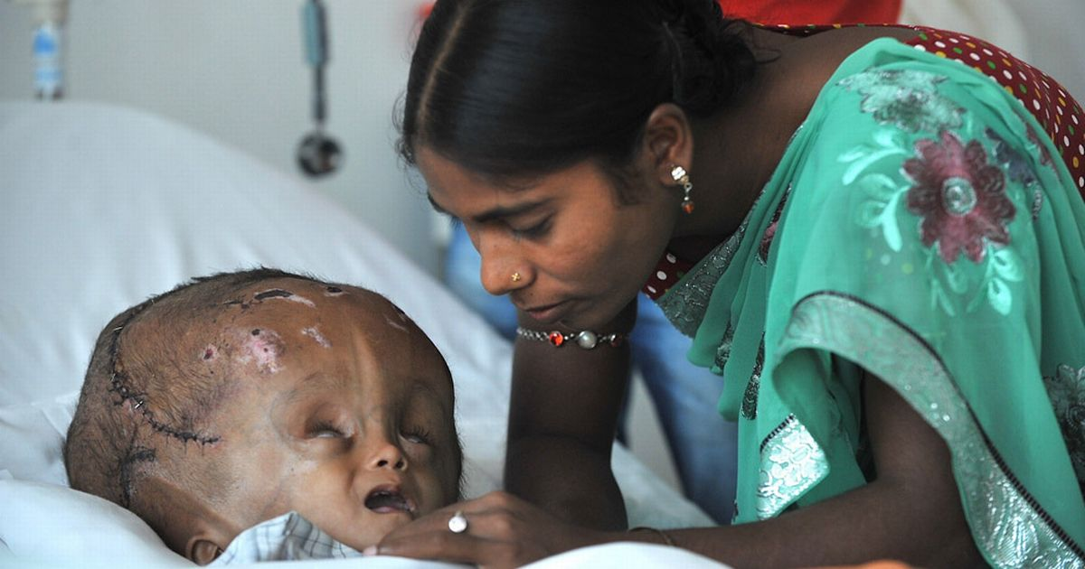 Swollenhead baby Parents of Roona Begum plead for more