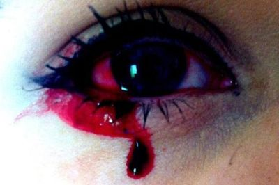 Girls eyes bleed