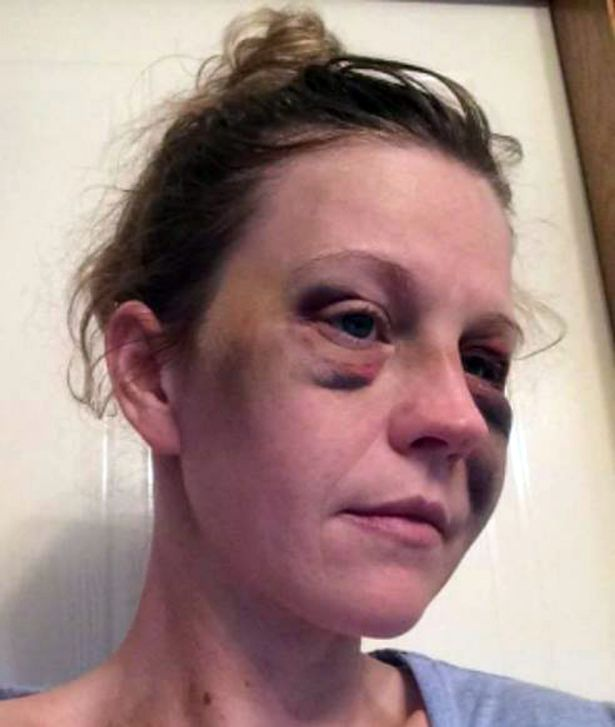 The injuries sustained by new mum Ashley Gebbie after she was attacked by Adam Crozier