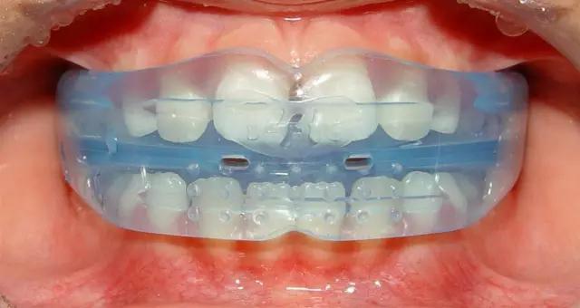 河馬牙醫|這是史上最好用的兒童矯正神器! - 壹讀