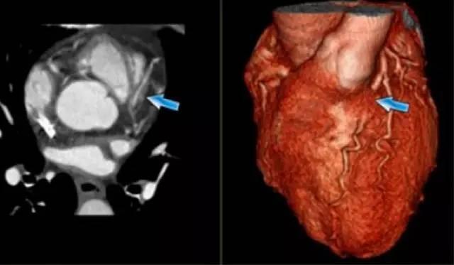 心臟解剖筆記:冠狀動脈 CT 解剖及變異 - 壹讀