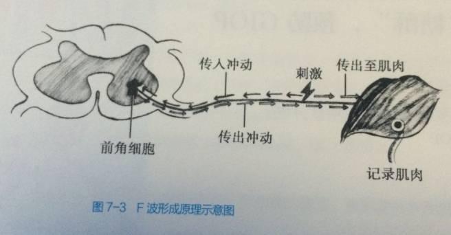 年輕醫生快來看,學習一下如何讀懂肌電圖~ - 壹讀
