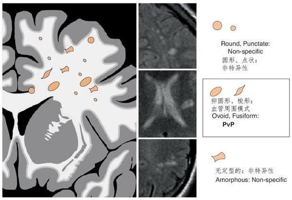 軍醫解讀磁共振腦白質區內斑點影 - 壹讀