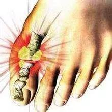 尿酸高肯定會引起痛風、腎病嗎?醫生推薦三種痛風治療方法! - 壹讀
