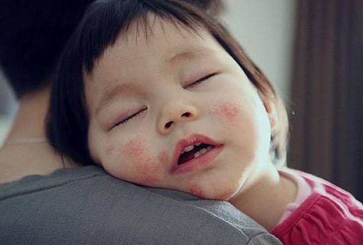 川崎病與玫瑰疹有什麼區別? - 壹讀