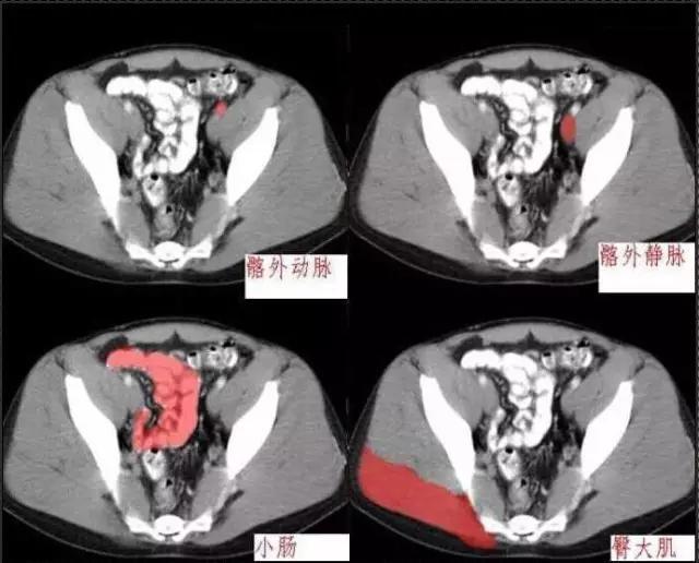 十分鐘學會腹部CT解剖(多圖) - 壹讀