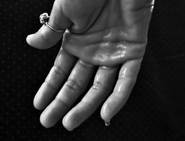 手汗癥究竟是什麼病。該如何治療?若你有。不妨了解一下 - 壹讀