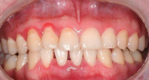 牙周炎的危害究竟有多大? - 壹讀