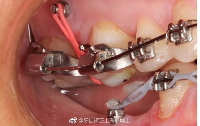 矯正牙齒非打骨釘不可嗎? - 壹讀