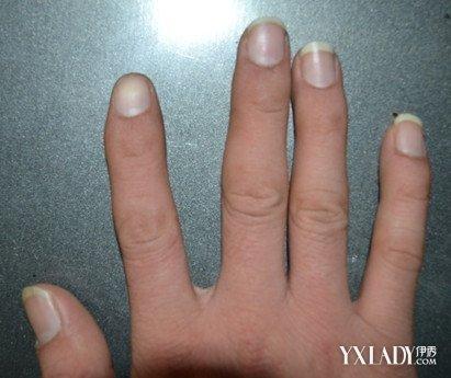 指甲是白色的怎麼回事 - 壹讀