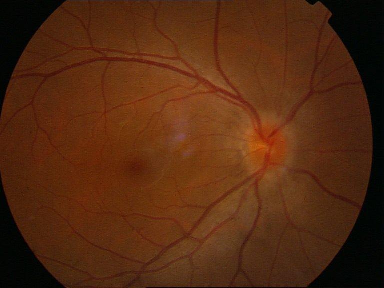 「視乳頭水腫」並不單單是視神經炎 - 壹讀