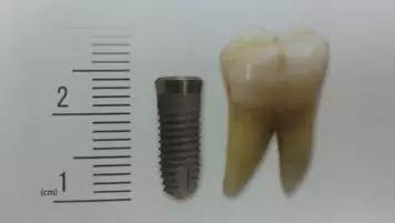 脫牙後的選擇--活動假牙?牙橋?種植牙? - 壹讀