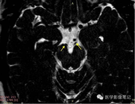 12對腦神經記憶口訣及影像解剖 - 壹讀
