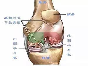 髕骨軟化癥。膝蓋不能承受的痛! - 壹讀