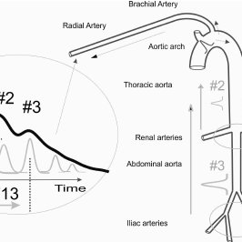 Sketch of the aorta/arm complex arterial system and its