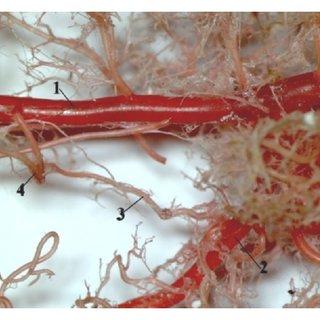 Morphology of rat liver (facies diaphragmatica). 1: lobus