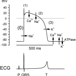 Brugada syndrome. A = normal ECG; B = Brugada syndrome