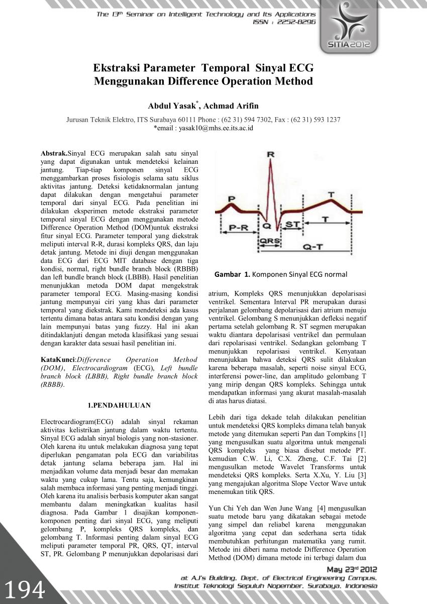(PDF) Ekstraksi Parameter Temporal Sinyal ECG Menggunakan Difference Operation Method