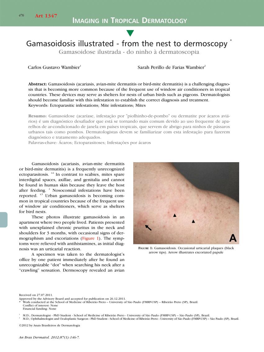 Apa Arti Mite : Gamasoidosis, Illustrated, Dermoscopy