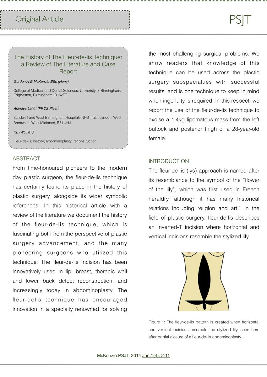 (PDF) The History of The Fleur-de-lis Technique: a Review