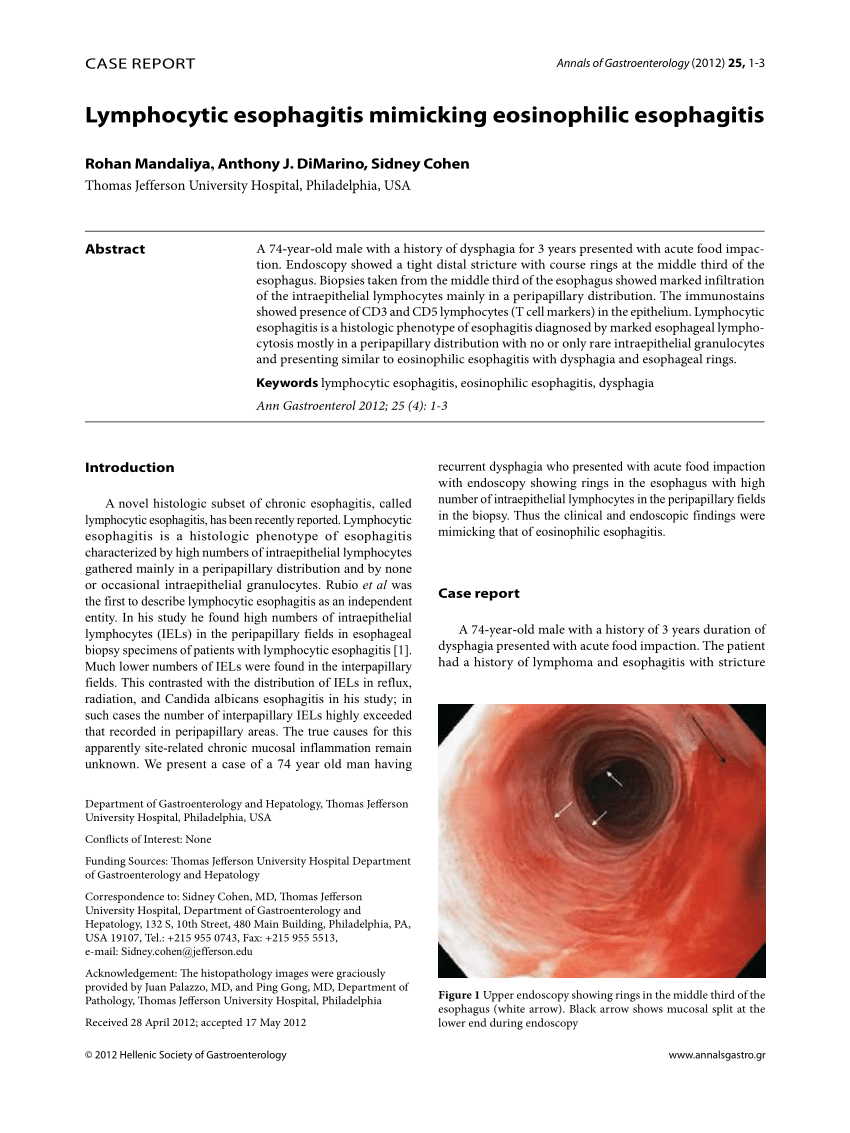 medium resolution of upper endoscopy showing rings in the middle third of the esophagus download scientific diagram