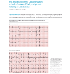 pdf the importance of the ladder diagram in the evaluation of tachyarrhythmia jumping to conclusions [ 850 x 1100 Pixel ]