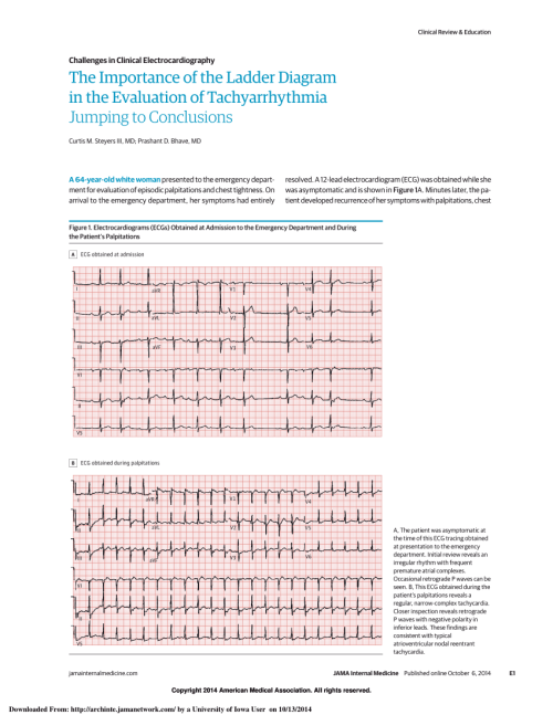 small resolution of  pdf the importance of the ladder diagram in the evaluation of tachyarrhythmia jumping to conclusions