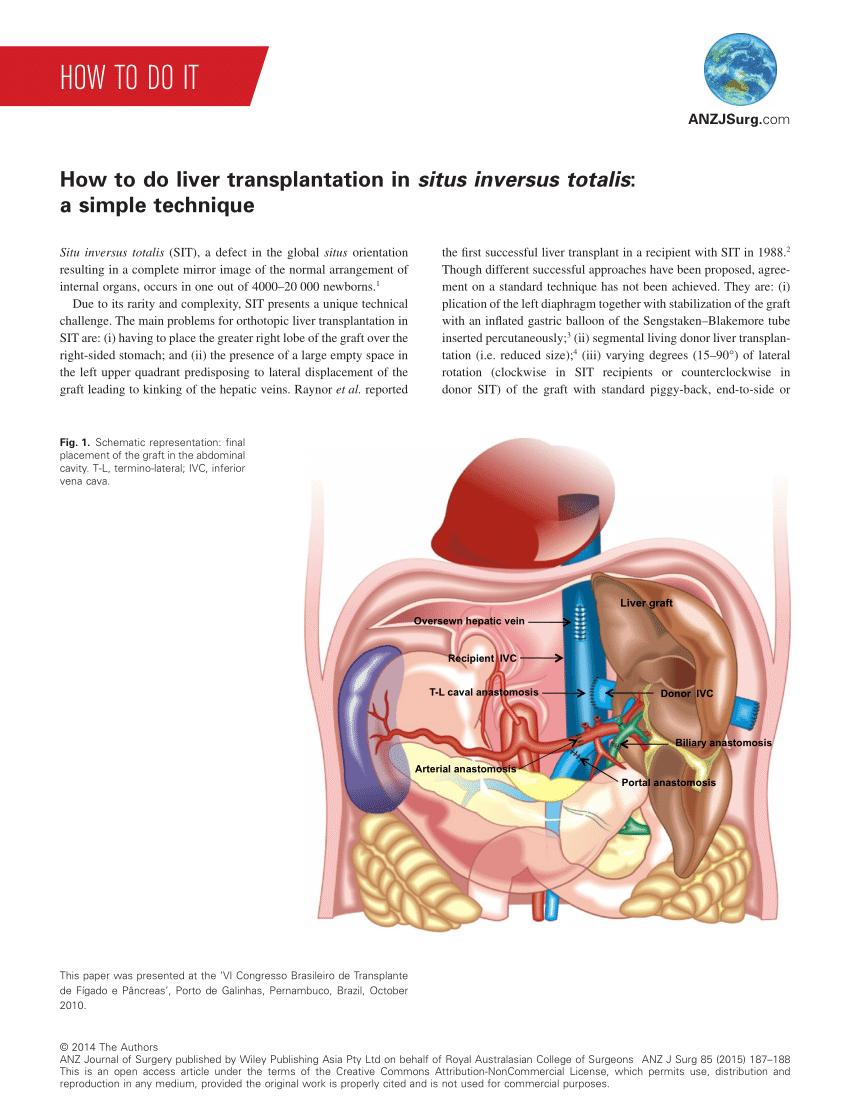 How to do liver transplantation in situs inversus totalis ...